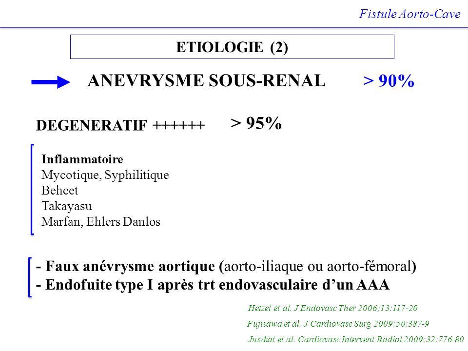 ETIOLOGIE (2) Fistule Aorto-Cave ANEVRYSME SOUS-RENAL > 90% DEGENERATIF ++++++ Inflammatoire Mycotique, Syphilitique Behcet Takayasu Marfan, Ehlers Da