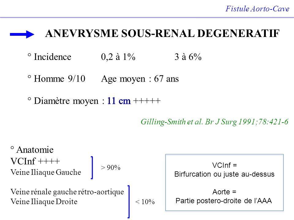 Fistule Aorto-Cave ANEVRYSME SOUS-RENAL DEGENERATIF Gilling-Smith et al. Br J Surg 1991;78:421-6 ° Homme 9/10Age moyen : 67 ans ° Incidence 0,2 à 1% 3