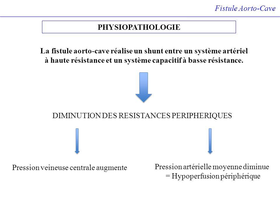 PHYSIOPATHOLOGIE Fistule Aorto-Cave Pression veineuse centrale augmente Pression artérielle moyenne diminue = Hypoperfusion périphérique DIMINUTION DE