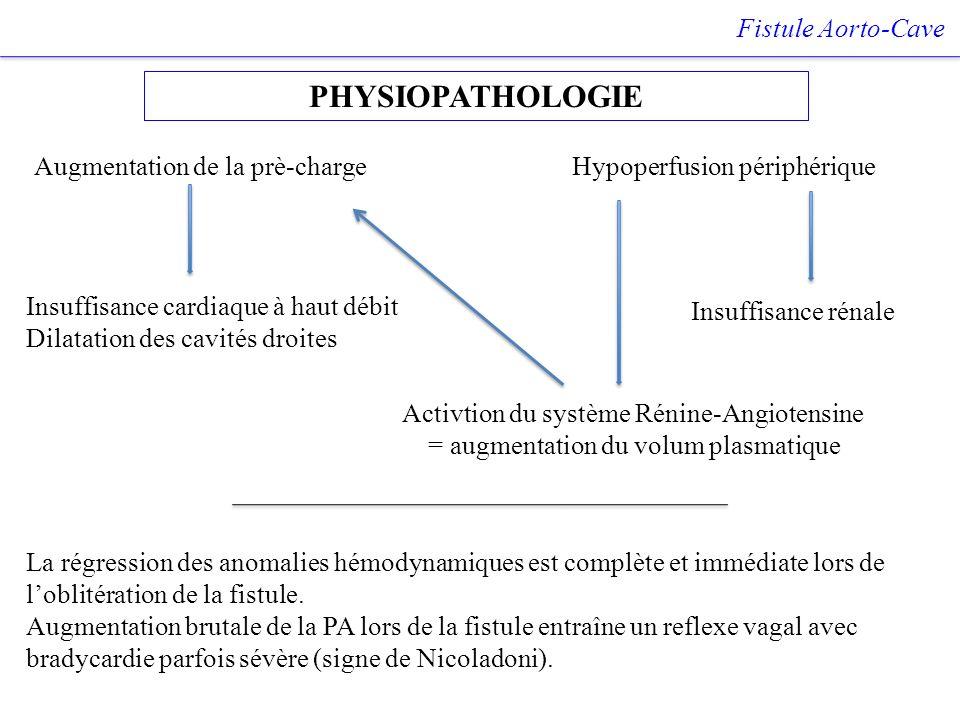 PHYSIOPATHOLOGIE Fistule Aorto-Cave Hypoperfusion périphérique Insuffisance rénale Insuffisance cardiaque à haut débit Dilatation des cavités droites