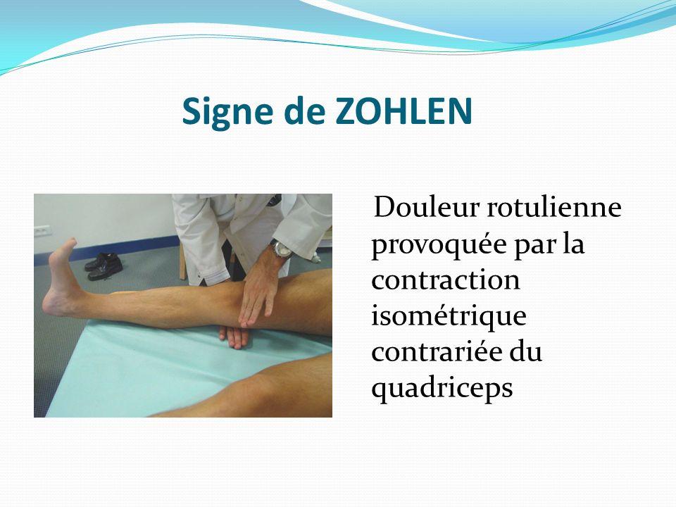Signe de ZOHLEN Douleur rotulienne provoquée par la contraction isométrique contrariée du quadriceps