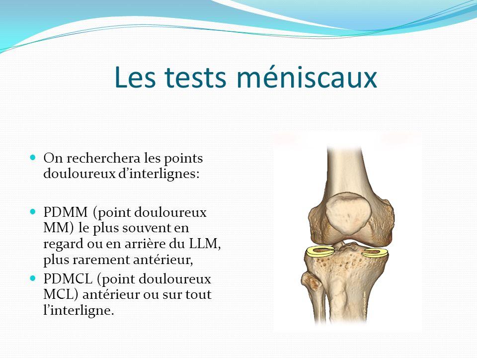 Les tests méniscaux On recherchera les points douloureux dinterlignes: PDMM (point douloureux MM) le plus souvent en regard ou en arrière du LLM, plus
