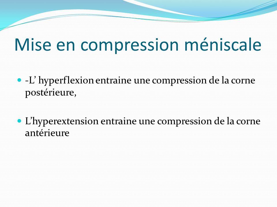 Mise en compression méniscale -L hyperflexion entraine une compression de la corne postérieure, Lhyperextension entraine une compression de la corne a