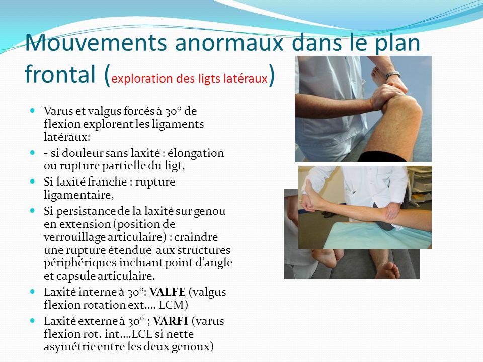 Mouvements anormaux dans le plan frontal ( exploration des ligts latéraux ) Varus et valgus forcés à 30° de flexion explorent les ligaments latéraux: