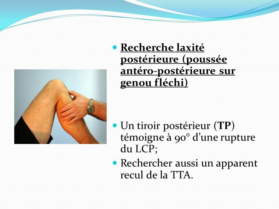 Recherche laxité postérieure (poussée antéro-postérieure sur genou fléchi) Un tiroir postérieur (TP) témoigne à 90° dune rupture du LCP; Rechercher au
