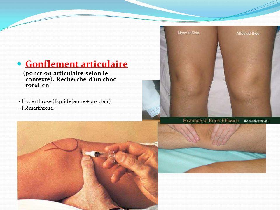 Diagnostics à évoquer devant un genou douloureux 1) Genou douloureux (douleur inflammatoire ou mixte), chaud, gonflé, non traumatique : a) arthrite microcristalline (goutte, chondrocalcinose…), b) arthrite rhumatismale (PR, arthrite réactionnelle, connectivite) c) arthrite infectieuse, d) Hémarthrose (hémophilie, chondrocalcinose, synovite villo-nodulaire, tumeur…ostéosarcome, chondrosarcome).