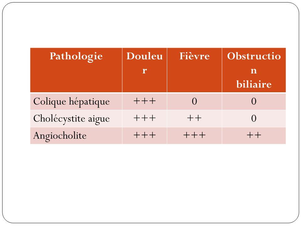 PathologieDouleu r FièvreObstructio n biliaire Colique hépatique+++00 Cholécystite aigue+++++0 Angiocholite+++ ++