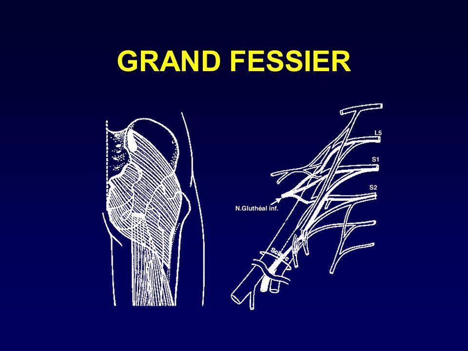 GRAND FESSIER