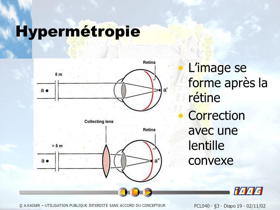 FCL040 - §3 - Diapo 19 - 02/11/02 © A.KAISER – UTILISATION PUBLIQUE INTERDITE SANS ACCORD DU CONCEPTEUR Hypermétropie Limage se forme après la rétine