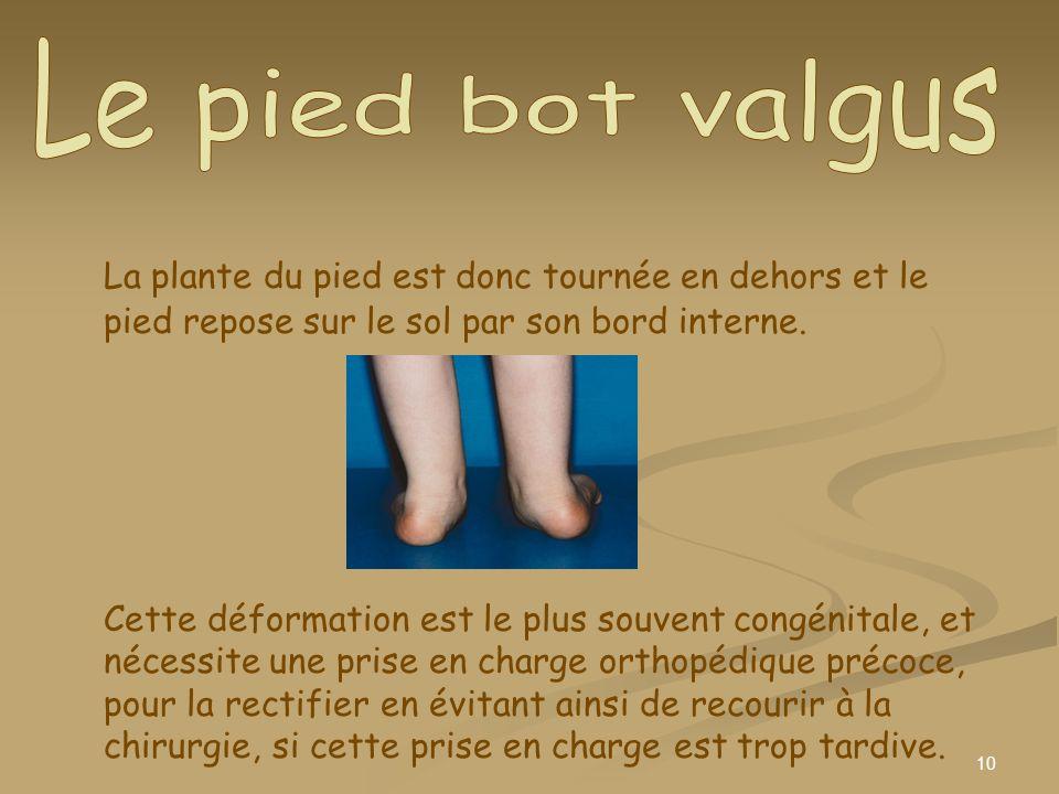10 La plante du pied est donc tournée en dehors et le pied repose sur le sol par son bord interne. Cette déformation est le plus souvent congénitale,