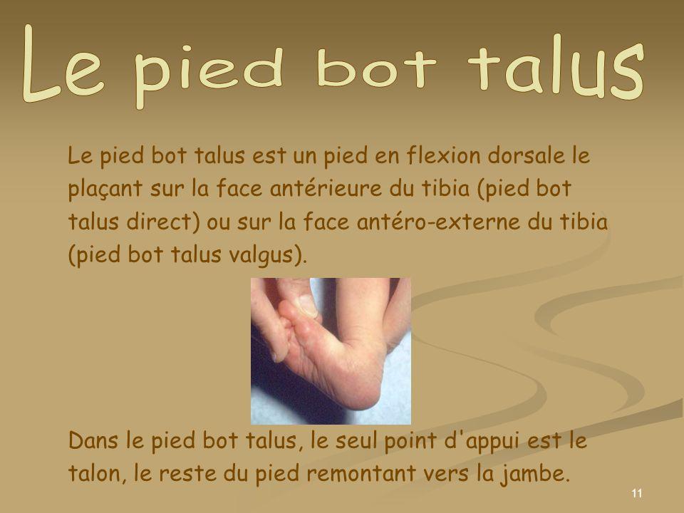 11 Le pied bot talus est un pied en flexion dorsale le plaçant sur la face antérieure du tibia (pied bot talus direct) ou sur la face antéro-externe d