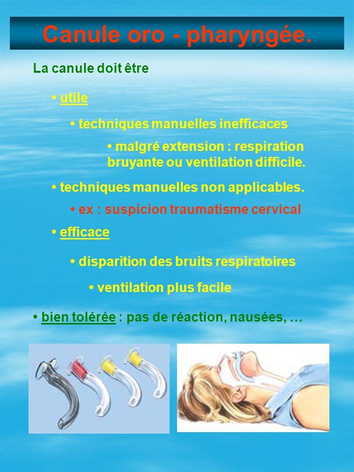 Canule oro - pharyngée. La canule doit être utile techniques manuelles inefficaces malgré extension : respiration bruyante ou ventilation difficile. t