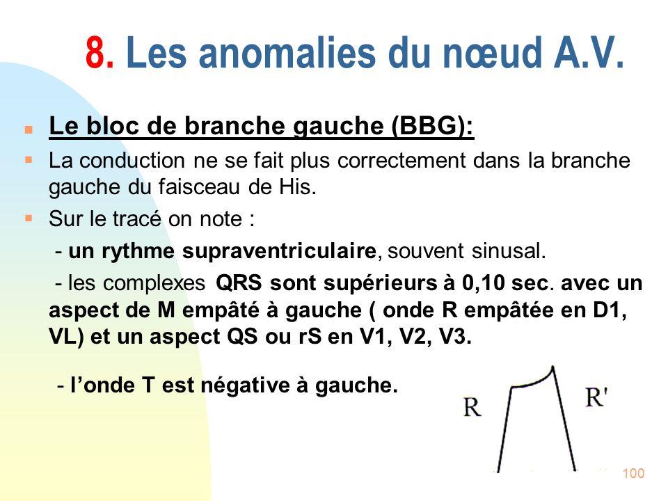 100 8. Les anomalies du nœud A.V. n Le bloc de branche gauche (BBG): La conduction ne se fait plus correctement dans la branche gauche du faisceau de