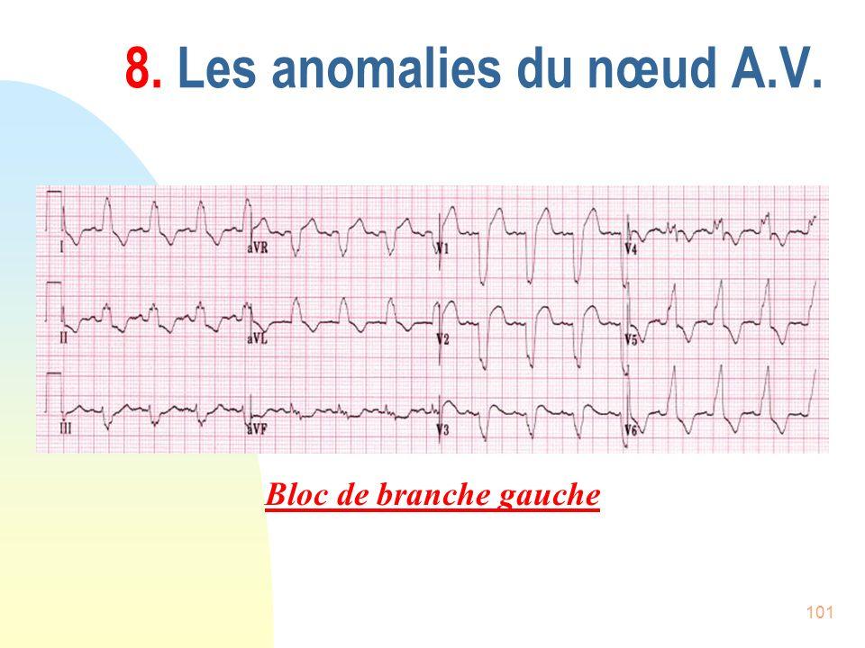 101 8. Les anomalies du nœud A.V. Bloc de branche gauche