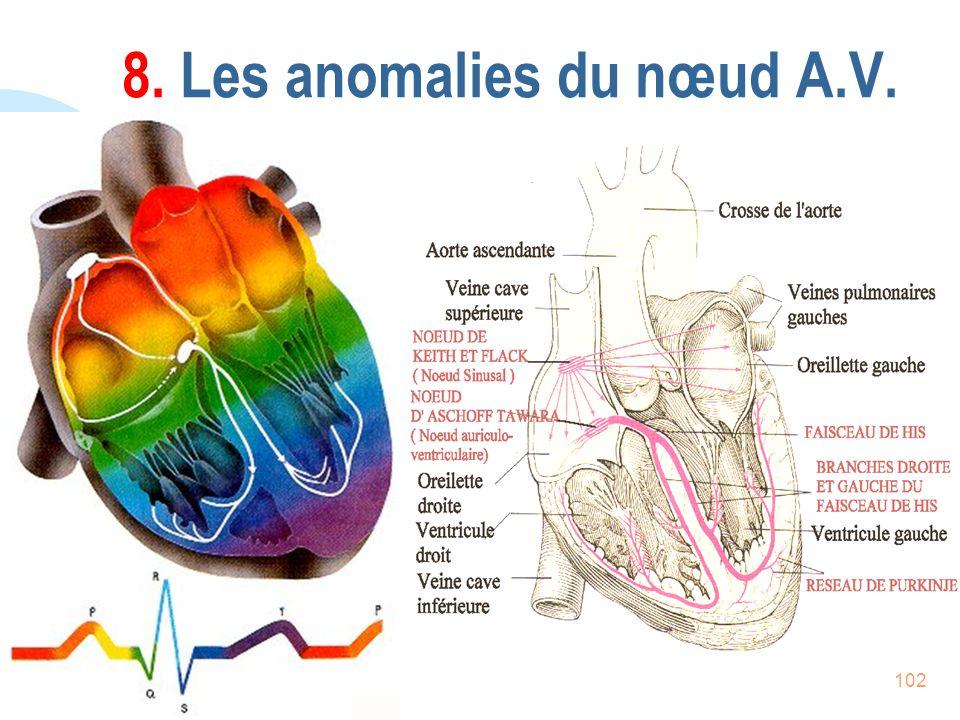 102 8. Les anomalies du nœud A.V.