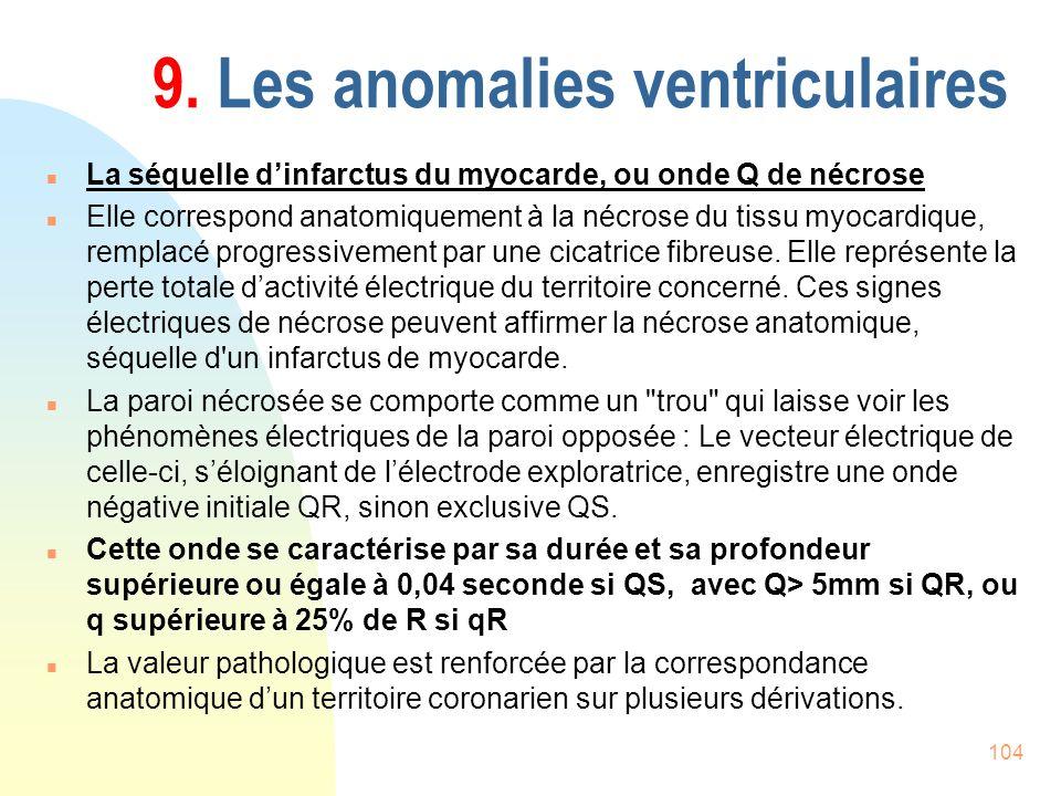 104 9. Les anomalies ventriculaires n La séquelle dinfarctus du myocarde, ou onde Q de nécrose n Elle correspond anatomiquement à la nécrose du tissu
