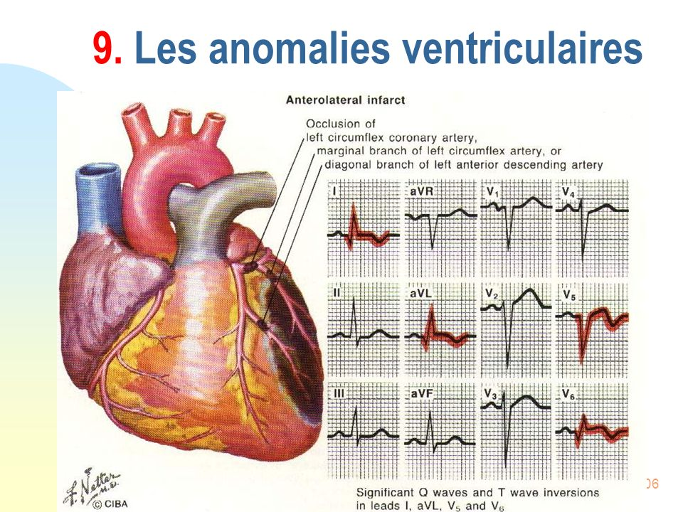 106 9. Les anomalies ventriculaires