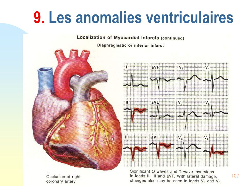 107 9. Les anomalies ventriculaires
