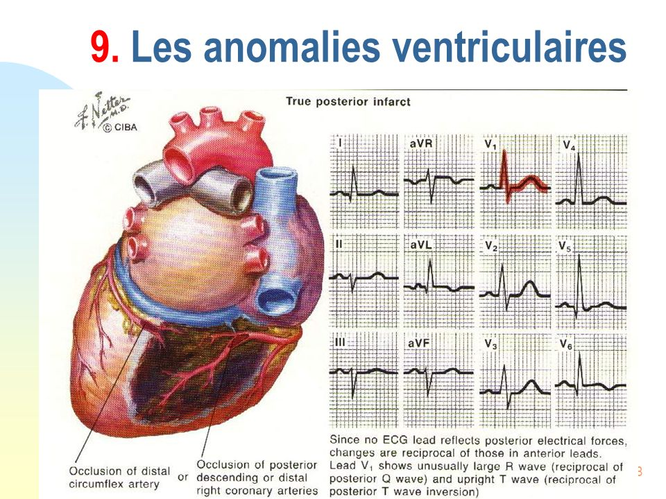 108 9. Les anomalies ventriculaires
