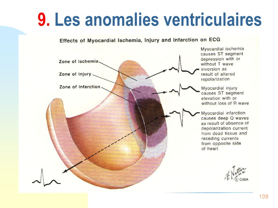 109 9. Les anomalies ventriculaires
