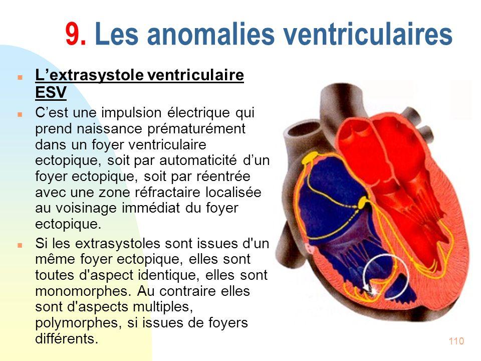 110 9. Les anomalies ventriculaires n Lextrasystole ventriculaire ESV n Cest une impulsion électrique qui prend naissance prématurément dans un foyer