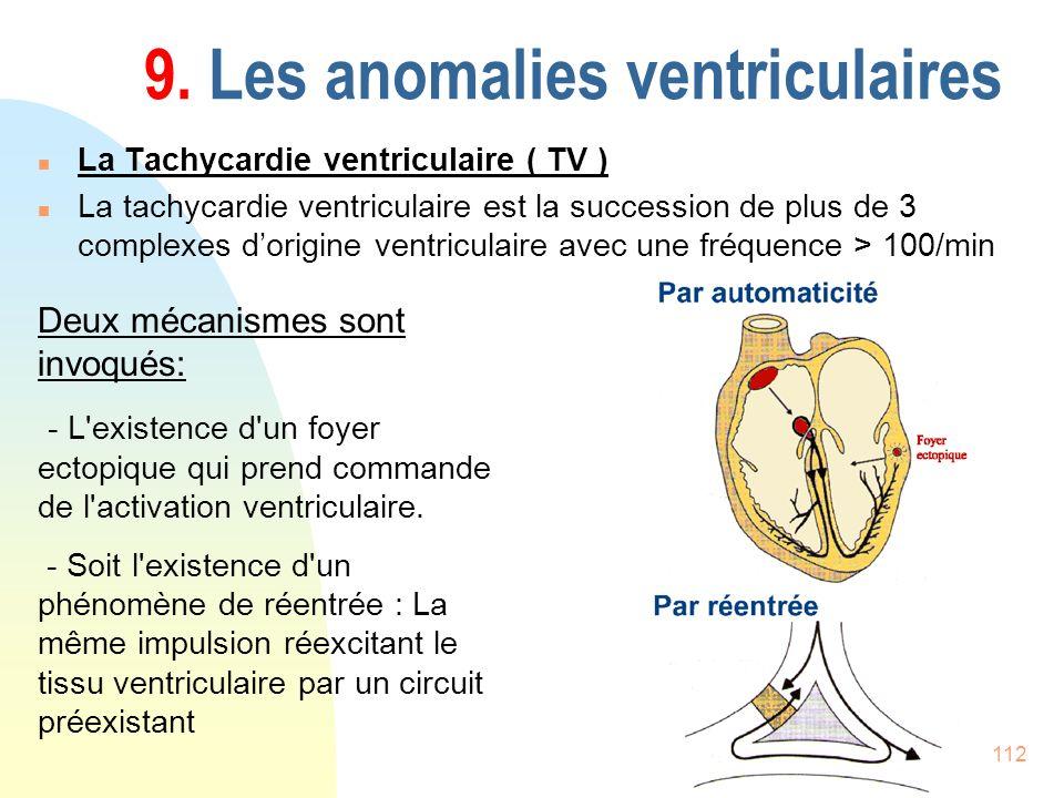 112 9. Les anomalies ventriculaires n La Tachycardie ventriculaire ( TV ) n La tachycardie ventriculaire est la succession de plus de 3 complexes dori