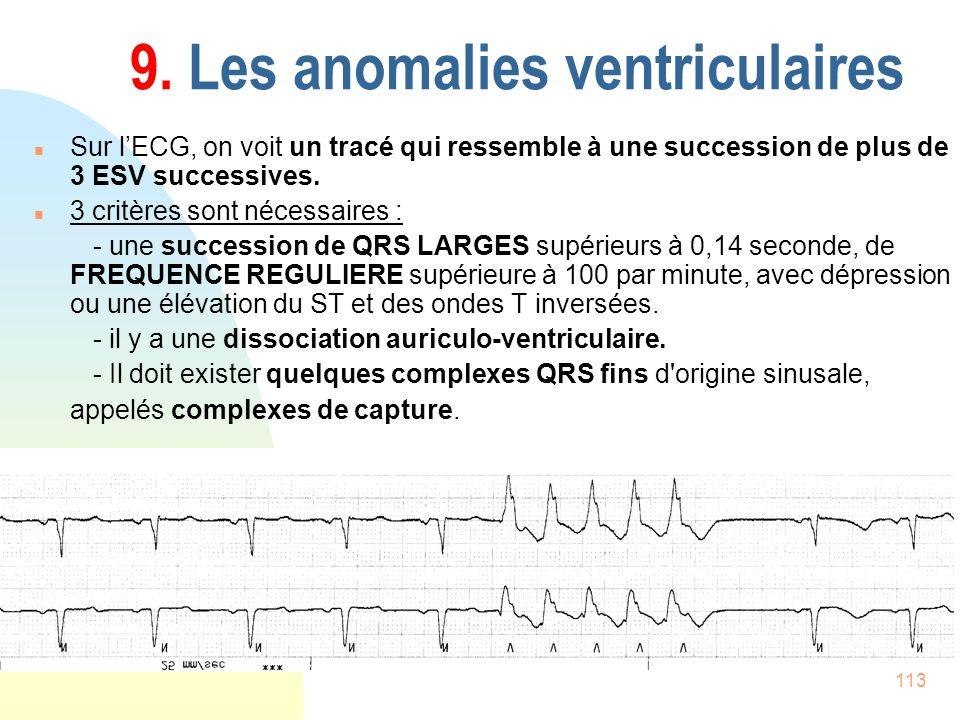 113 9. Les anomalies ventriculaires n Sur lECG, on voit un tracé qui ressemble à une succession de plus de 3 ESV successives. n 3 critères sont nécess