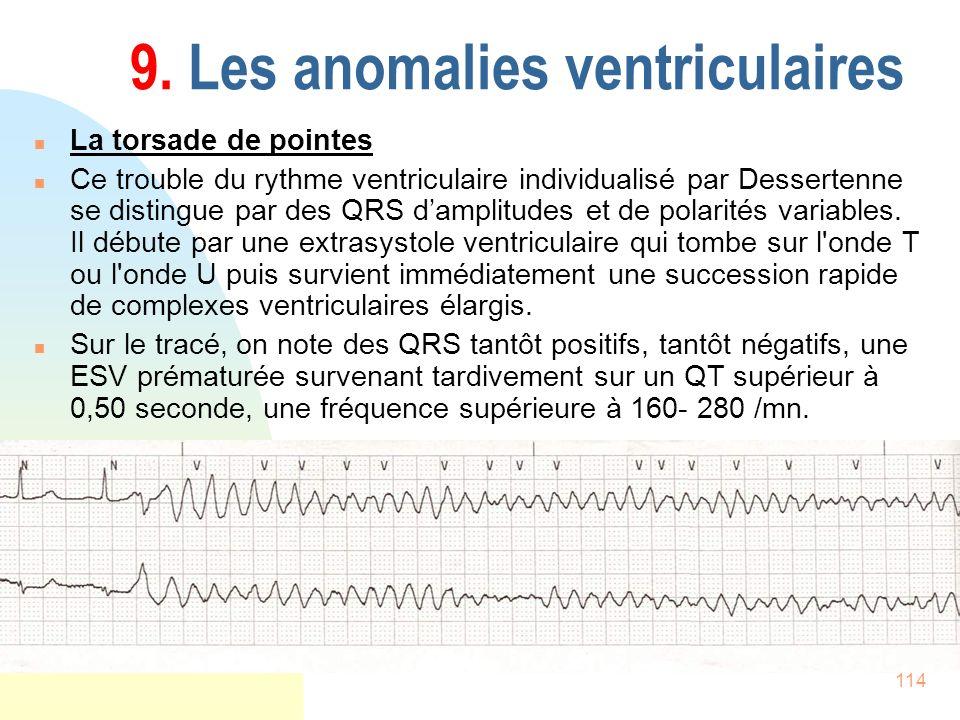 114 9. Les anomalies ventriculaires n La torsade de pointes n Ce trouble du rythme ventriculaire individualisé par Dessertenne se distingue par des QR