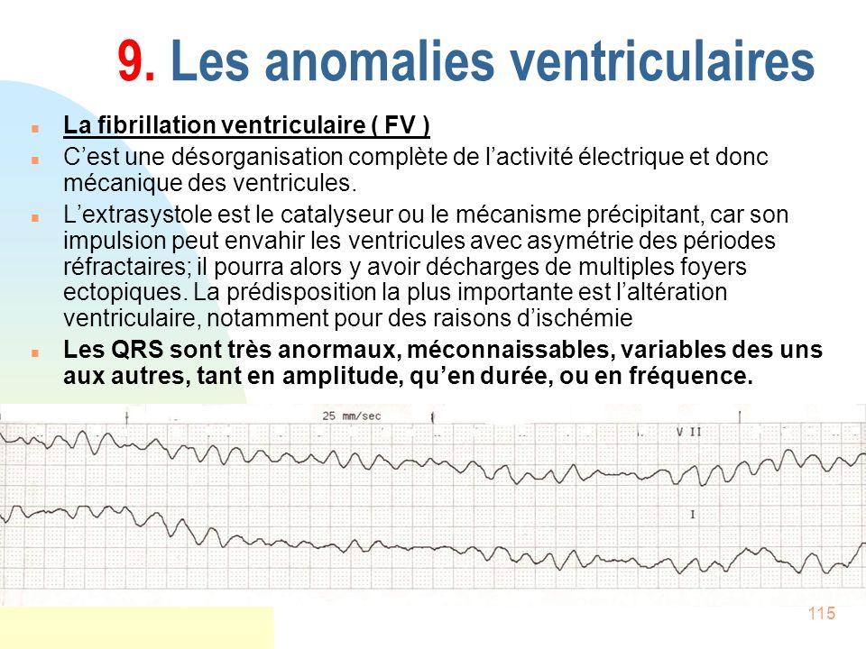 115 9. Les anomalies ventriculaires n La fibrillation ventriculaire ( FV ) n Cest une désorganisation complète de lactivité électrique et donc mécaniq