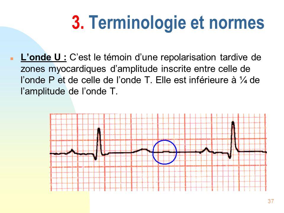 37 3. Terminologie et normes n Londe U : Cest le témoin dune repolarisation tardive de zones myocardiques damplitude inscrite entre celle de londe P e
