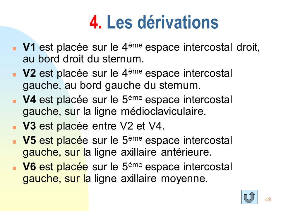 49 4. Les dérivations n V1 est placée sur le 4 ème espace intercostal droit, au bord droit du sternum. n V2 est placée sur le 4 ème espace intercostal