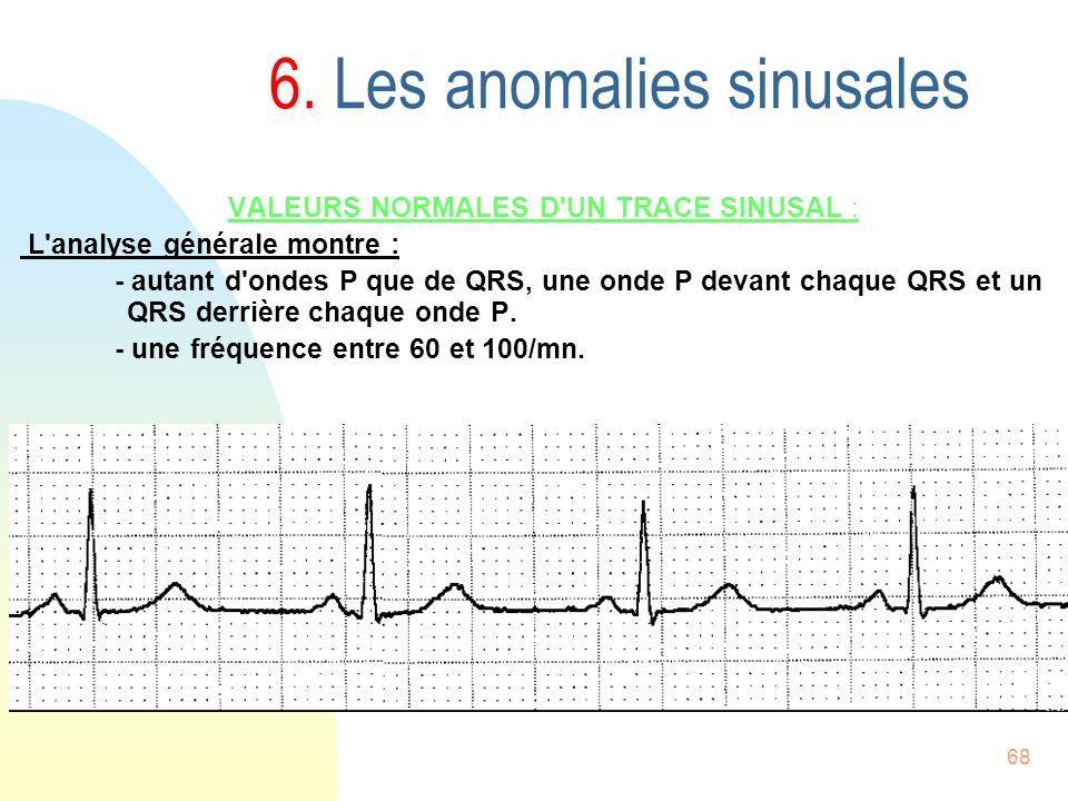 68 6. Les anomalies sinusales VALEURS NORMALES D'UN TRACE SINUSAL : L'analyse générale montre : - autant d'ondes P que de QRS, une onde P devant chaqu