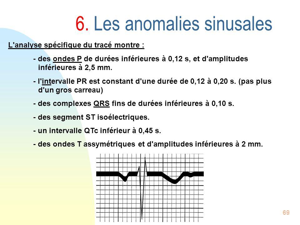 69 6. Les anomalies sinusales L'analyse spécifique du tracé montre : - des ondes P de durées inférieures à 0,12 s, et d'amplitudes inférieures à 2,5 m