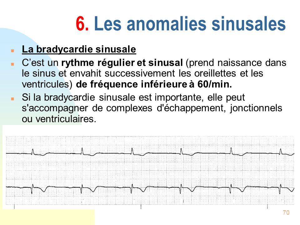 70 6. Les anomalies sinusales n La bradycardie sinusale n Cest un rythme régulier et sinusal (prend naissance dans le sinus et envahit successivement