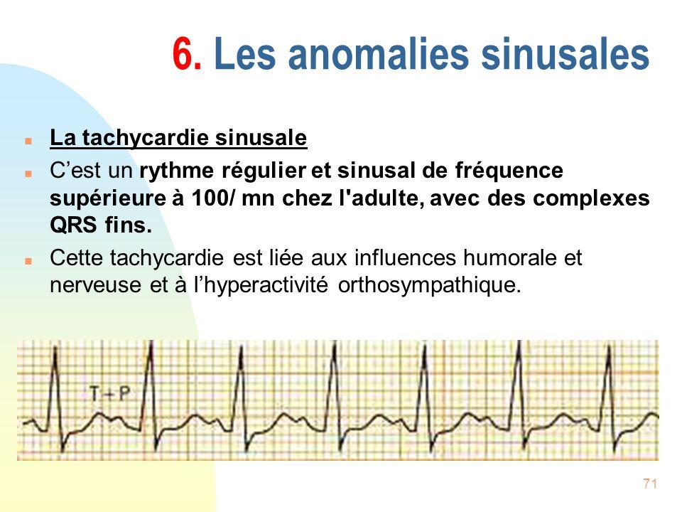71 6. Les anomalies sinusales n La tachycardie sinusale n Cest un rythme régulier et sinusal de fréquence supérieure à 100/ mn chez l'adulte, avec des