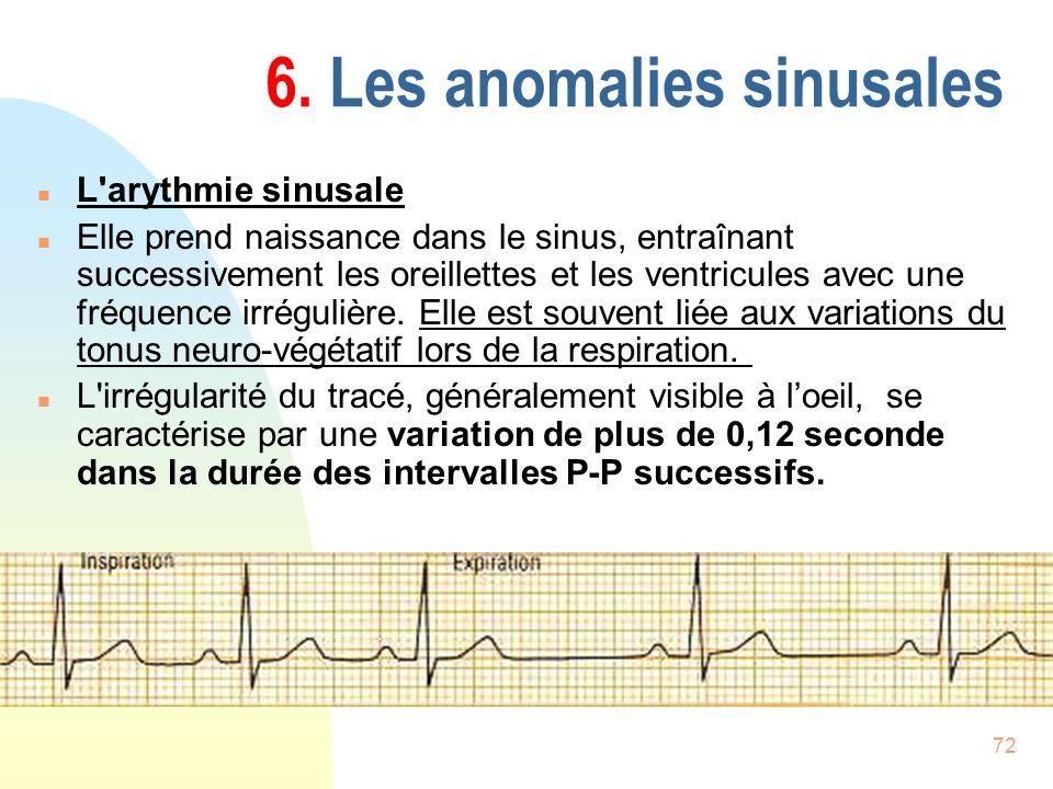 72 6. Les anomalies sinusales n L'arythmie sinusale n Elle prend naissance dans le sinus, entraînant successivement les oreillettes et les ventricules