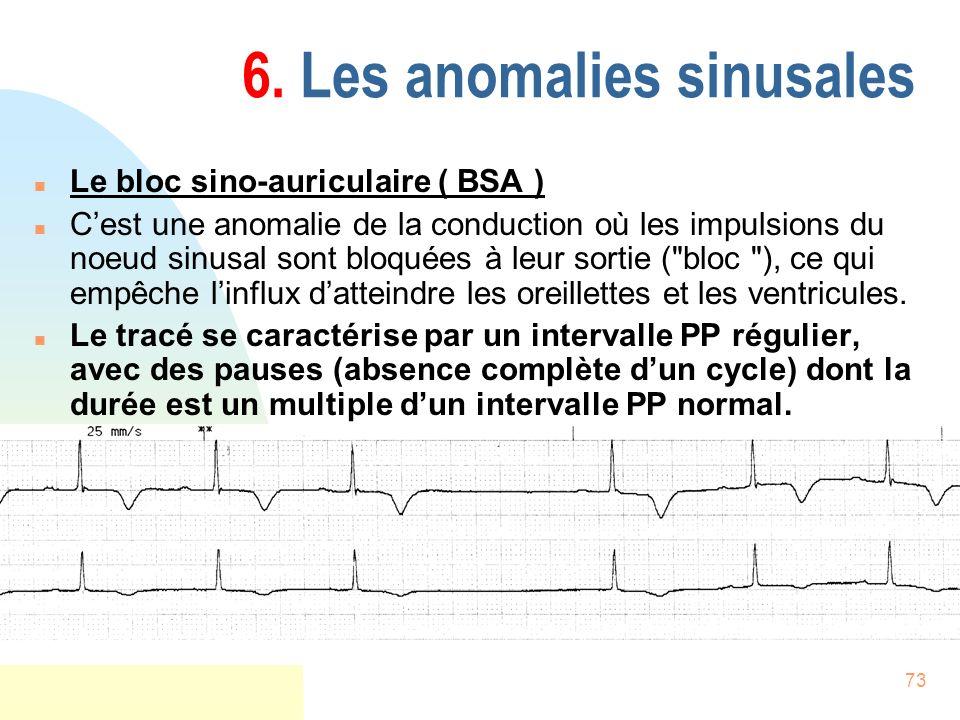 73 6. Les anomalies sinusales n Le bloc sino-auriculaire ( BSA ) n Cest une anomalie de la conduction où les impulsions du noeud sinusal sont bloquées