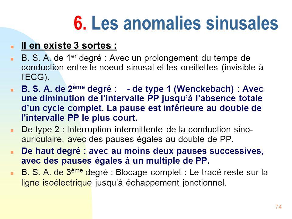 74 6. Les anomalies sinusales n Il en existe 3 sortes : n B. S. A. de 1 er degré : Avec un prolongement du temps de conduction entre le noeud sinusal
