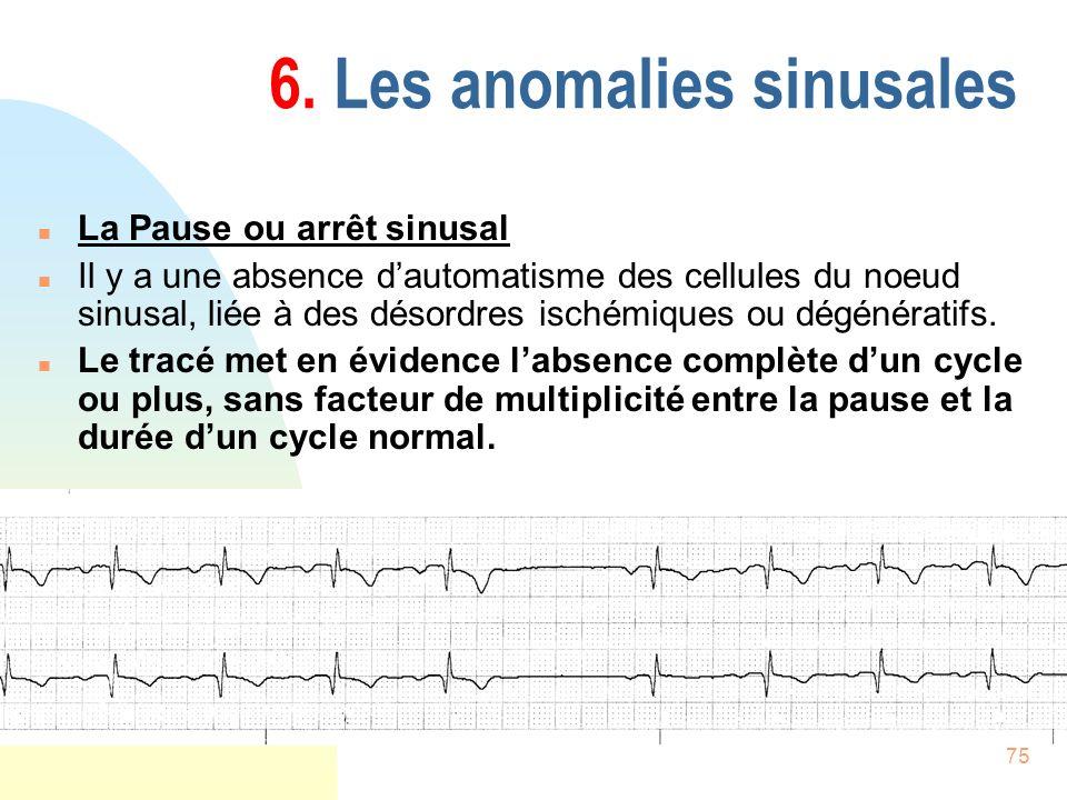 75 6. Les anomalies sinusales n La Pause ou arrêt sinusal n Il y a une absence dautomatisme des cellules du noeud sinusal, liée à des désordres ischém
