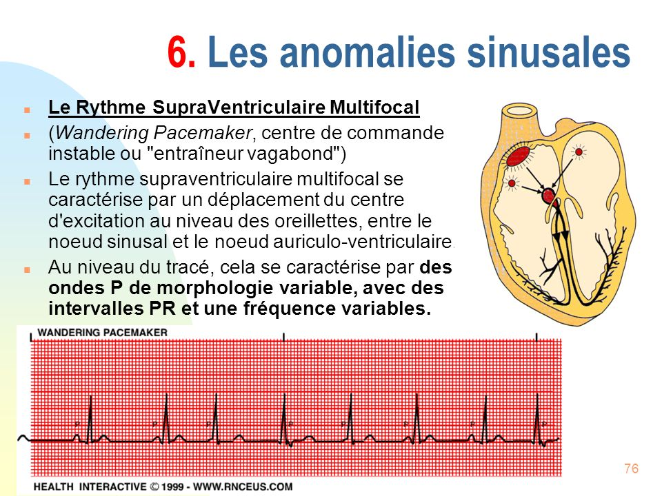 76 6. Les anomalies sinusales n Le Rythme SupraVentriculaire Multifocal n (Wandering Pacemaker, centre de commande instable ou