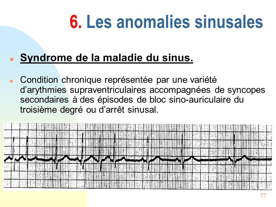 77 6. Les anomalies sinusales n Syndrome de la maladie du sinus. n Condition chronique représentée par une variété darythmies supraventriculaires acco