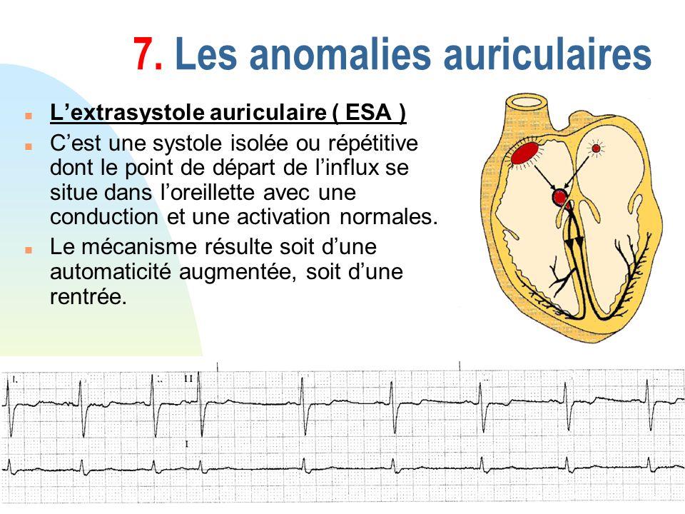 79 7. Les anomalies auriculaires n Lextrasystole auriculaire ( ESA ) n Cest une systole isolée ou répétitive dont le point de départ de linflux se sit