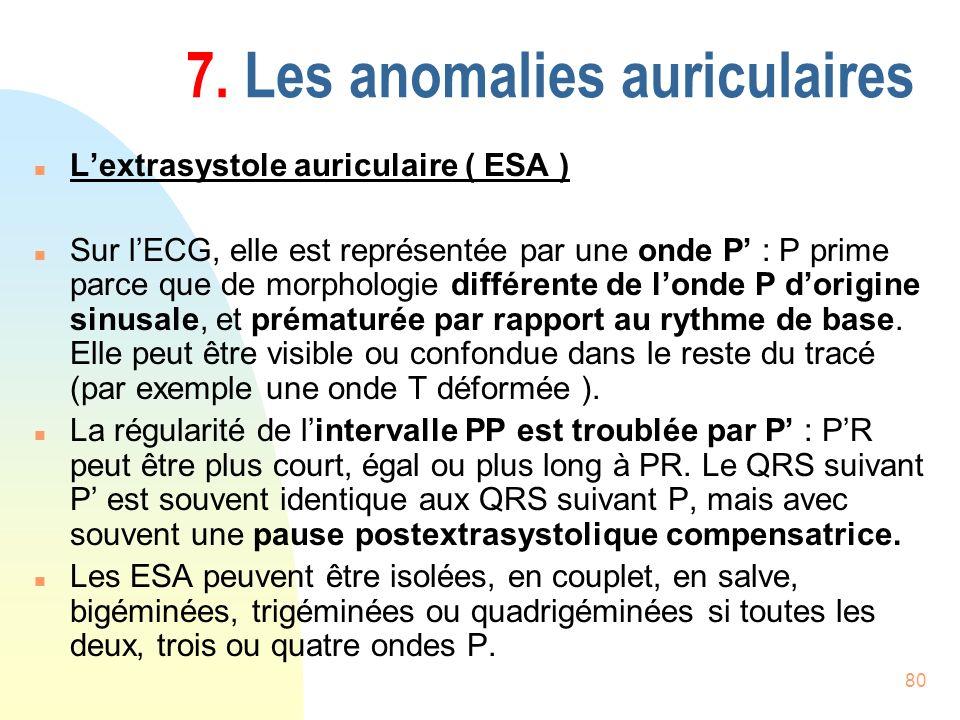 80 7. Les anomalies auriculaires n Lextrasystole auriculaire ( ESA ) n Sur lECG, elle est représentée par une onde P : P prime parce que de morphologi
