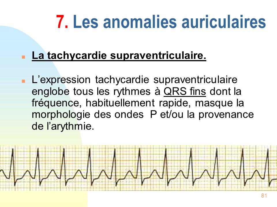 81 7. Les anomalies auriculaires n La tachycardie supraventriculaire. n Lexpression tachycardie supraventriculaire englobe tous les rythmes à QRS fins