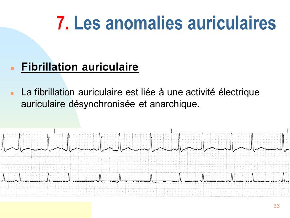 83 7. Les anomalies auriculaires n Fibrillation auriculaire n La fibrillation auriculaire est liée à une activité électrique auriculaire désynchronisé