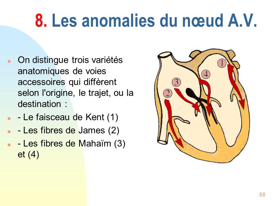 88 8. Les anomalies du nœud A.V. n On distingue trois variétés anatomiques de voies accessoires qui diffèrent selon l'origine, le trajet, ou la destin