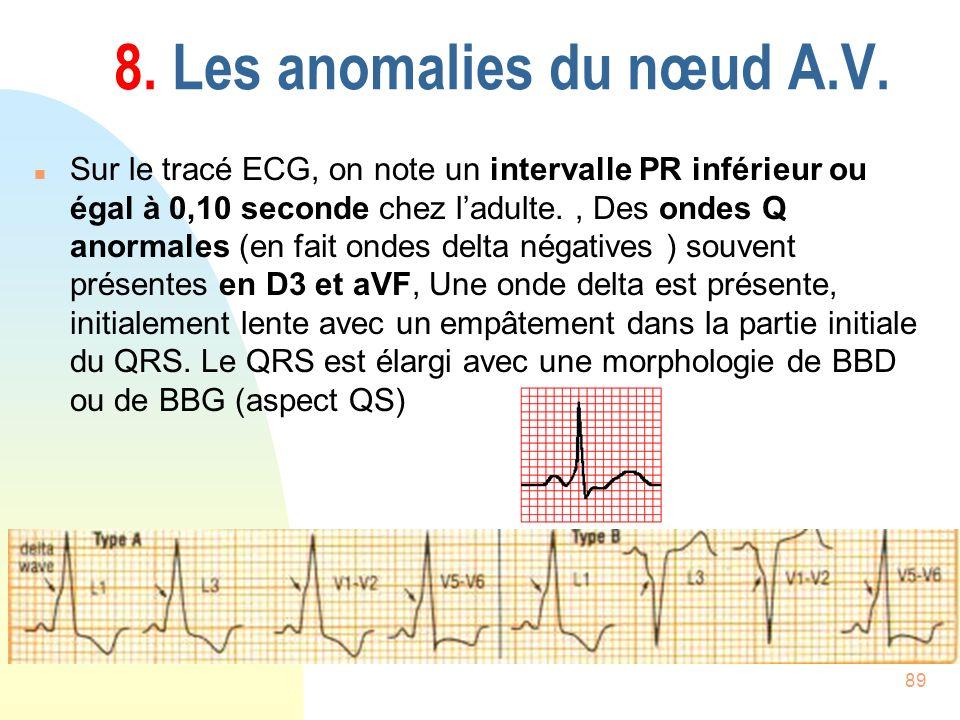 89 8. Les anomalies du nœud A.V. n Sur le tracé ECG, on note un intervalle PR inférieur ou égal à 0,10 seconde chez ladulte., Des ondes Q anormales (e