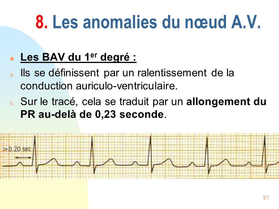 91 8. Les anomalies du nœud A.V. n Les BAV du 1 er degré : a. Ils se définissent par un ralentissement de la conduction auriculo-ventriculaire. b. Sur