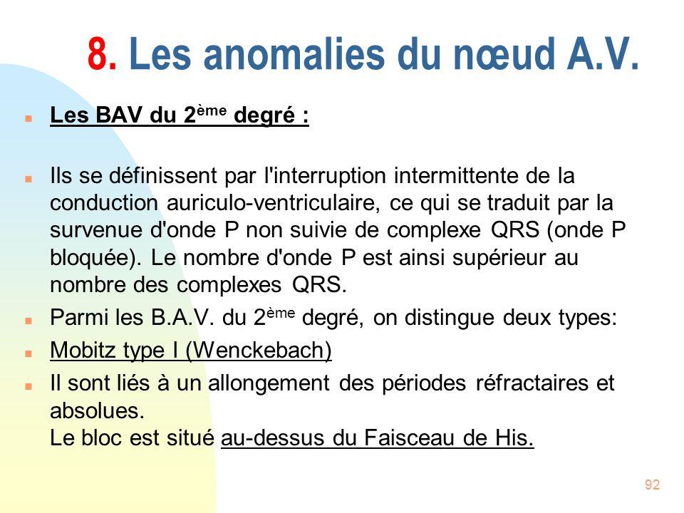 92 8. Les anomalies du nœud A.V. n Les BAV du 2 ème degré : n Ils se définissent par l'interruption intermittente de la conduction auriculo-ventricula