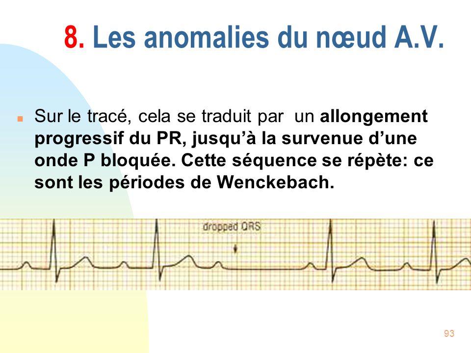 93 8. Les anomalies du nœud A.V. n Sur le tracé, cela se traduit par un allongement progressif du PR, jusquà la survenue dune onde P bloquée. Cette sé